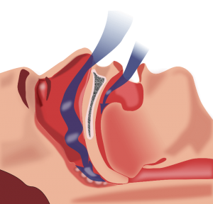 nasal works for stop snoring